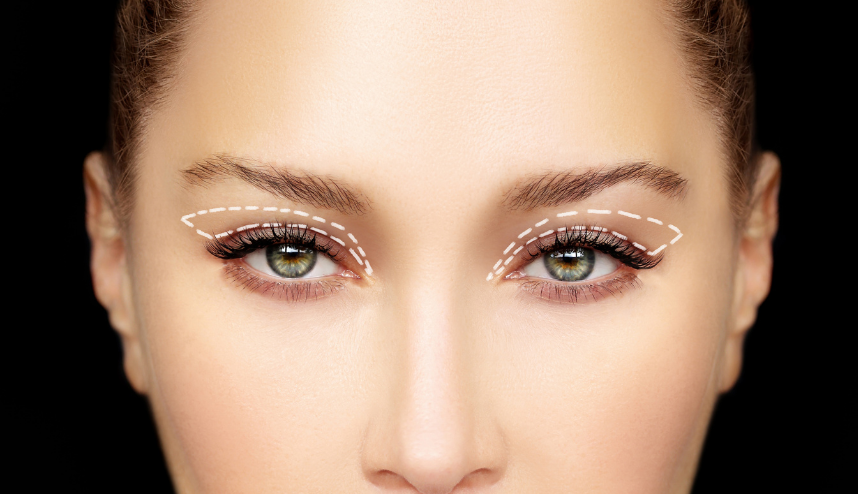 candidate for Blepharoplasty and eyelid surgery