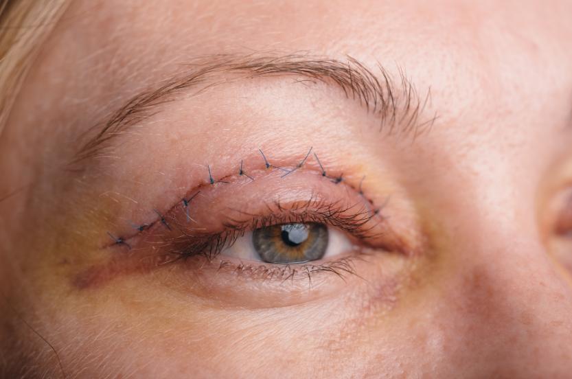 Blepharoplasty and eyelid surgery recovery