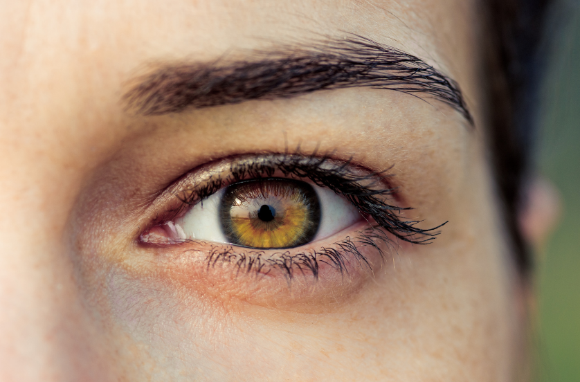How does Non surgical under eye blepharoplasty with accutite work
