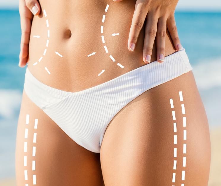 Accutite skin tightening fat reduction in Key West