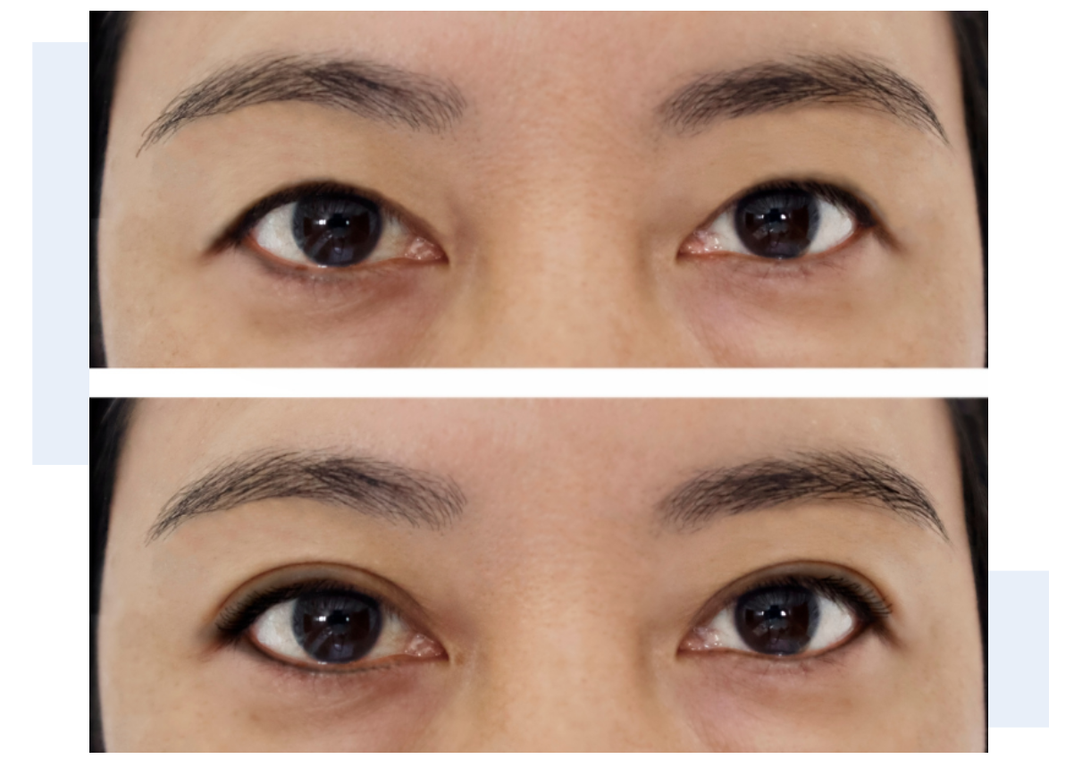Blepharoplasty and eyelid surgery before and after